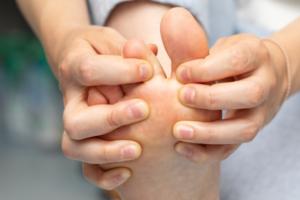 pieczenie i swędzenie stóp jako objaw grzybicy stóp